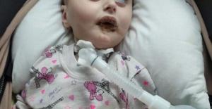 5 Aylık SMA Tip 1 Kas Hastası Irmak Bebek hayat mücadelesini sürdürüyo